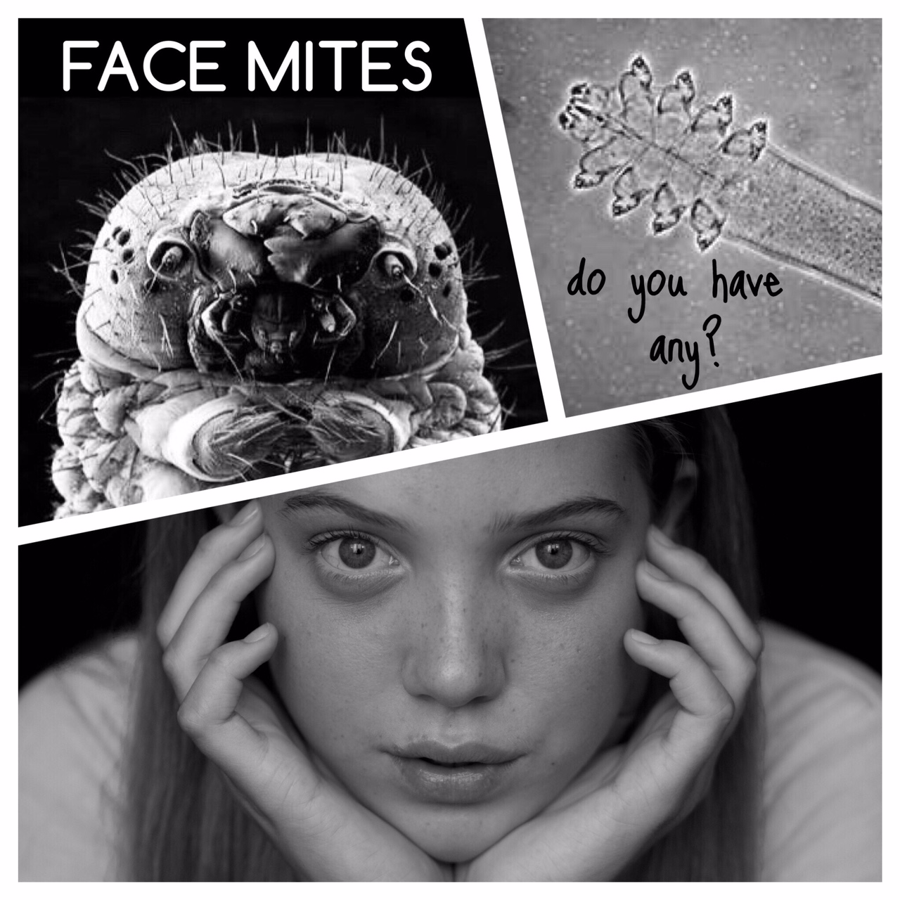 Face Mites