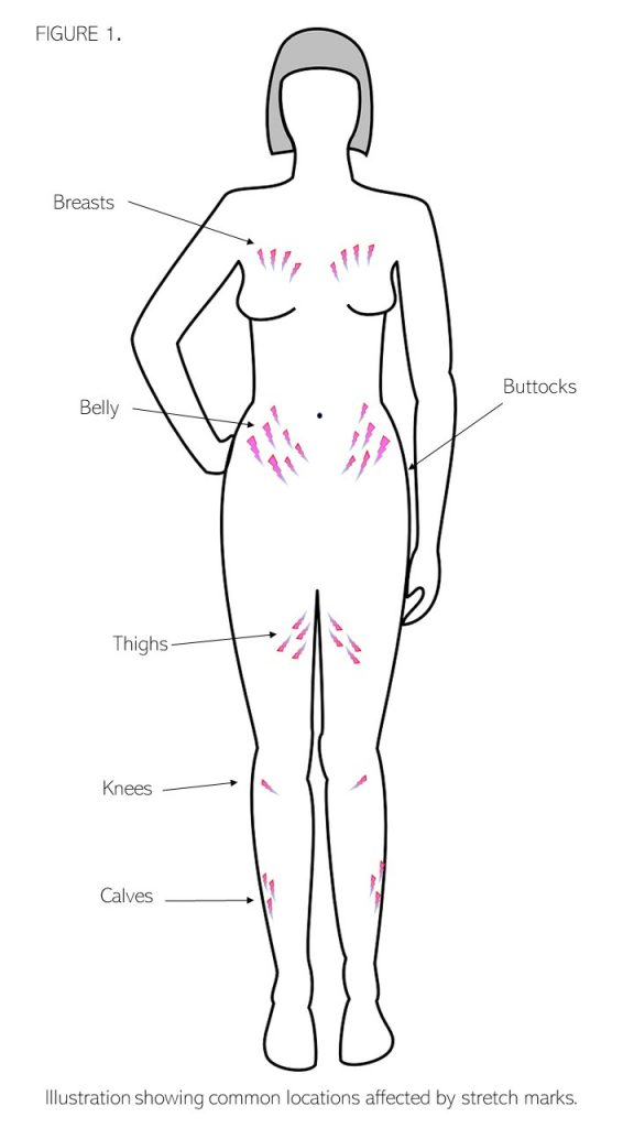 Common locations affected by stretch marks.